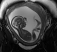 An image from a fetal MRI
