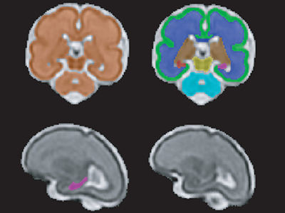 T2-Weighted Magnetic Resonance (MR) Imaging Brain Segmentation